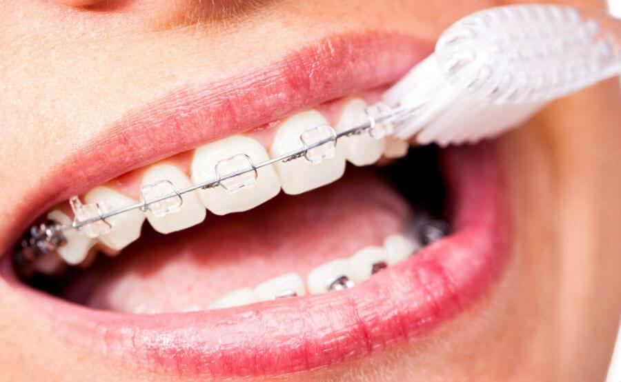 Зачем нужны брекеты на зубах? В чем состоят их преимущества